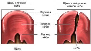 cleft_palate